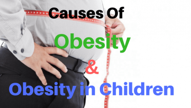 Photo of Causes of Obesity & Obesity in Children