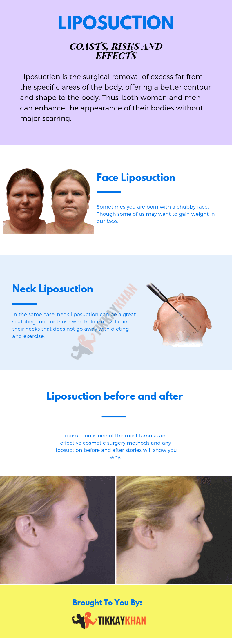 Liposuction Infographic by TikkayKhan