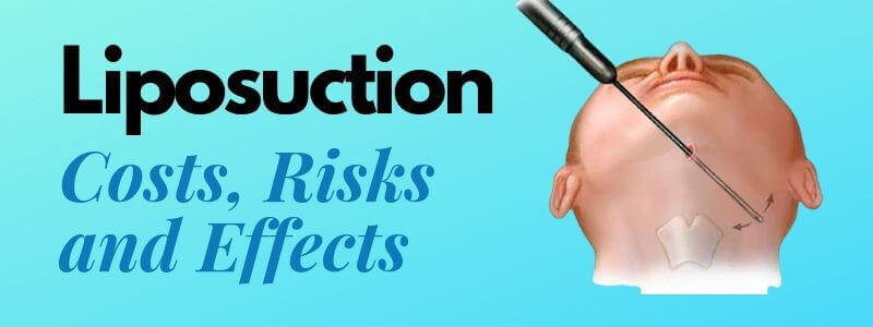 Liposuction, Its Cost, Risks and Effects
