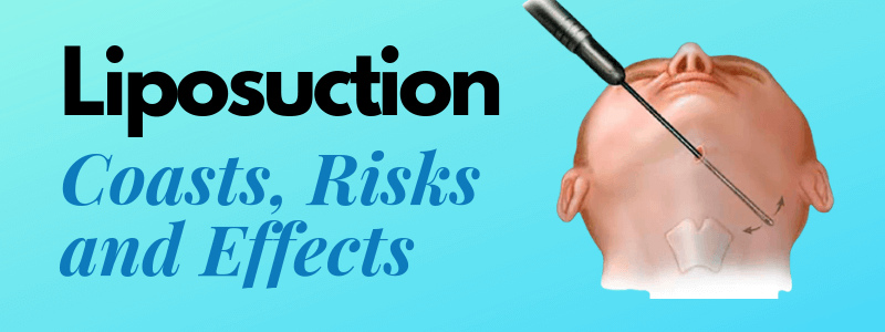 Liposuction ,Its Cost, Risks and Effects